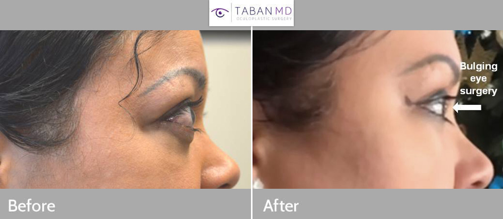 Young woman, with bulging eyes due to Graves thryoid eye disease, underwent scarless orbital decompression surgery, to restore more natural eye appearance and improved eye closure.