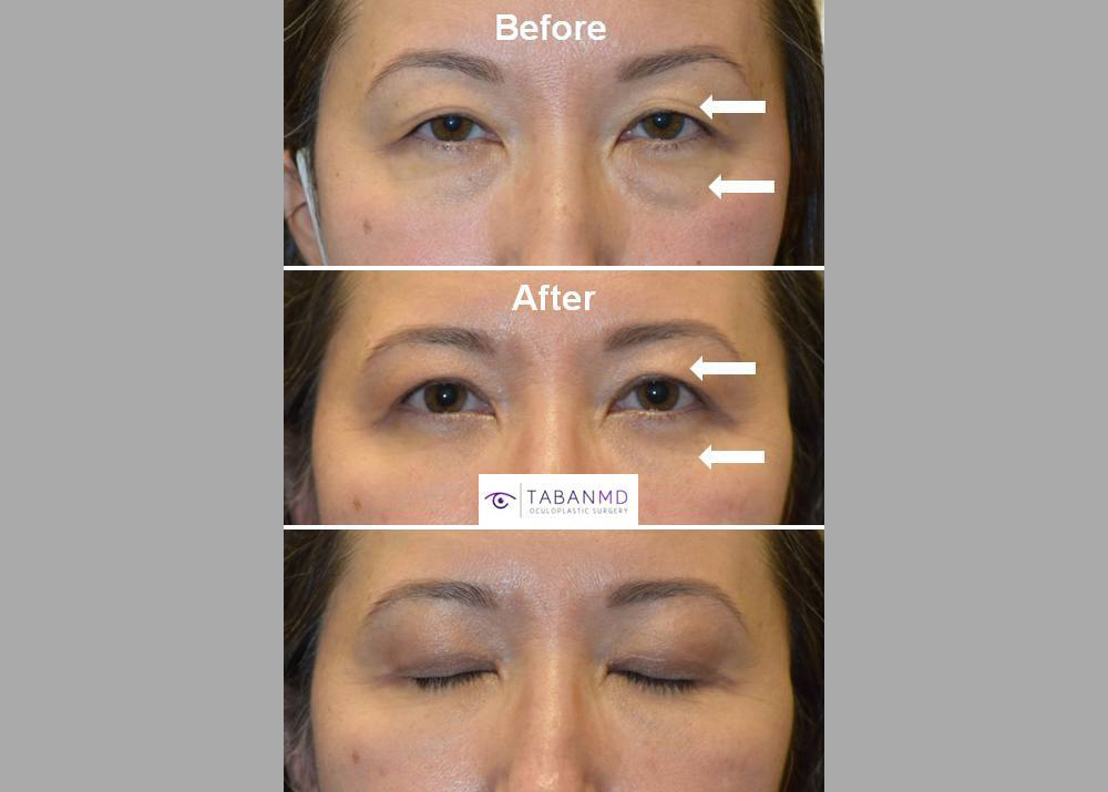 46 year old Asian female, underwent conservative Asian upper blepharoplasty plus lower blepharoplasty. Note more rested eye appearance.