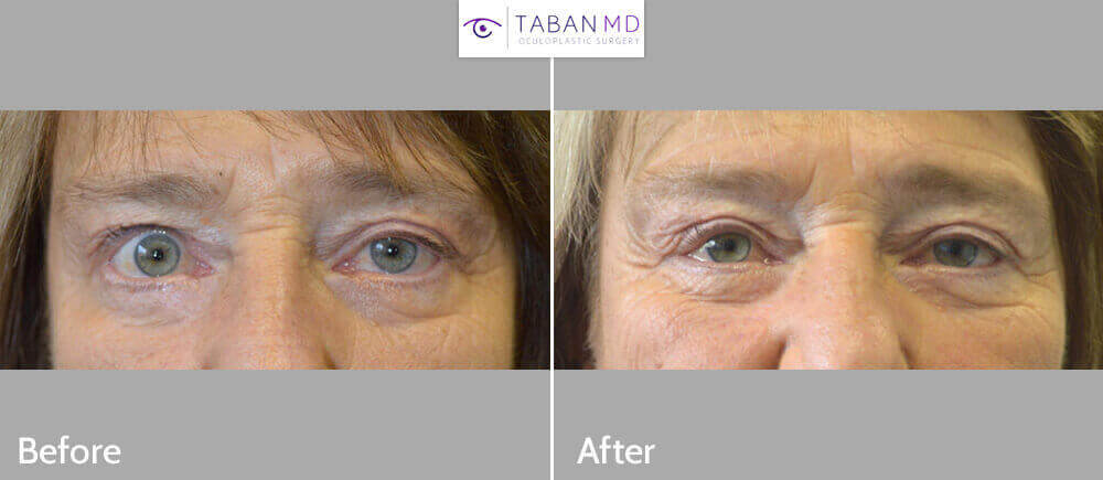 70 year old female, with upper eyelid asymmetry (uneven eyes) due to right upper eyelid retraction, underwent right upper eyelid retraction repair. Before and 3 months after eyelid surgery photos are shown. Note improve eye symmetry.
