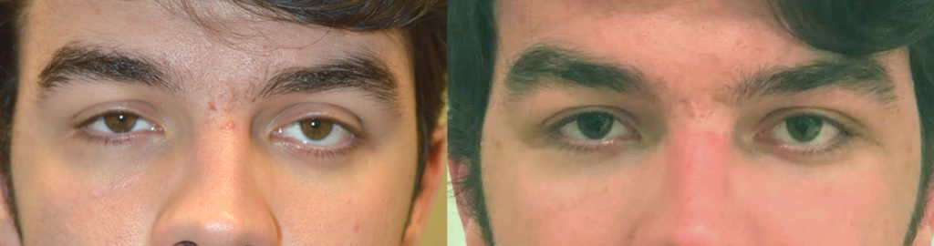 20 year old male, complained of uneven asymmetric eyes. This is due to sunken right eye from orbital blow out fracture and congenital left lower eyelid retraction. He already had right orbital fracture repair by another surgeon with persistent enophthalmos (sunken eye). He underwent left orbital decompression plus left lower eyelid retraction surgery. He also underwent droopy upper eyelid ptosis surgery on both eyes. Before and 6 weeks after eye plastic surgery photos are shown. Note improved eye symmetry and youthful eyes.