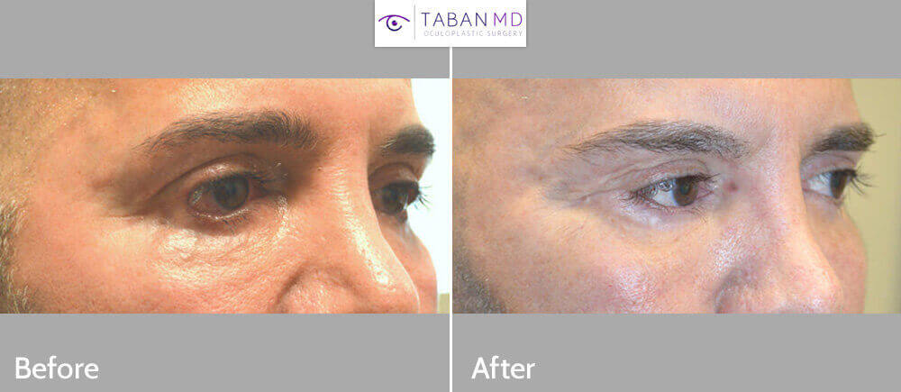 55 year old male, with severe lower eyelid retraction and eyelid scarring due to botched lower blepharoplasty with dry eyes due to inability to close eyes normally, underwent revision eyelid surgery to include lower eyelid retraction (internal approach, soof lift, alloderm spacer graft) with canthoplasty. Before and 3 months after corrective eyelid surgery photos are shown.