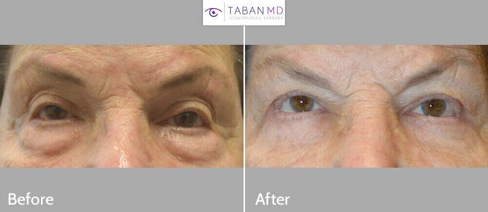 83 year old female, with upper eyelid ptosis with abnormal eyelid contour after failed upper eyelid ptosis surgery and blepharoplasty, underwent revision upper eyelid ptosis surgery using full-thickness method, where mainly the medial upper eyelids (segment closer to the nose) were lifted. She also had unrelated lower blepharoplasty (tranconjunctival with fat repositioning and skin pinch) for under eye bags. Before and 3 months after eyelid surgery photos are shown.