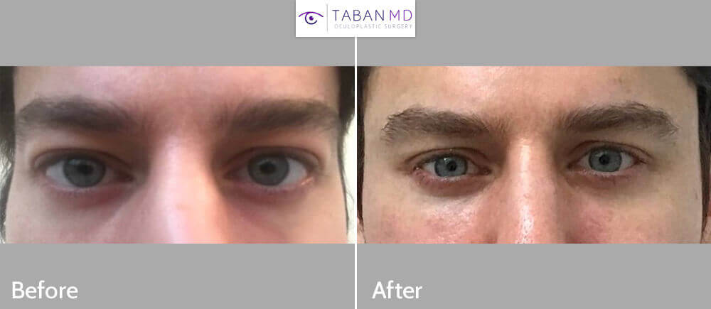 almond eye surgery Before and After Patient 28 Dr. Taban Beverly Hills