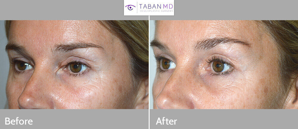 canthus from previous blepharoplasty with canthal web. She underwent revision eyelid scar surgery with epicanthoplasty. Preoperative and 3 months postoperative photos are shown.
