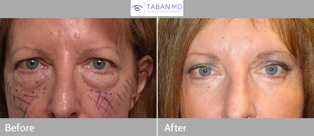Forehead Lift Oculoplastic Surgeon