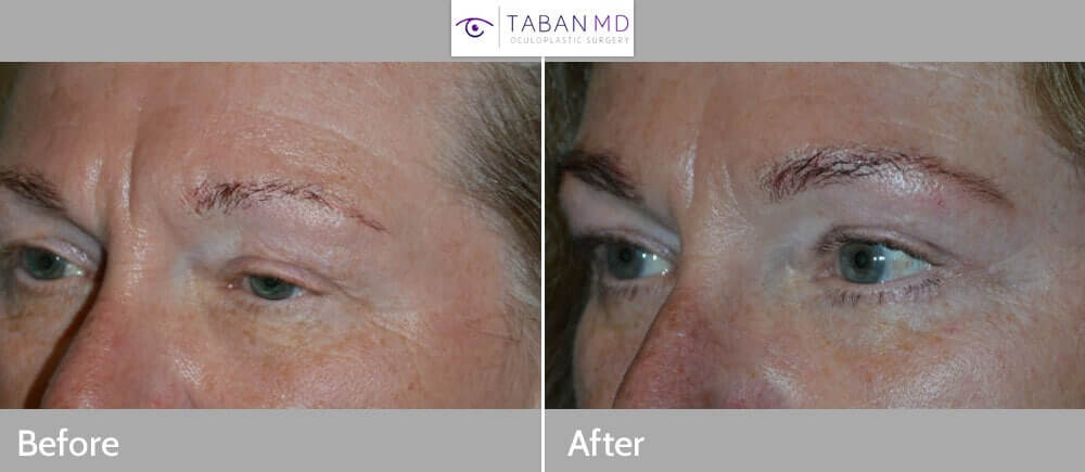 60+ year old female, complained of saggy droopy upper eyelids (secondary to eyelid ptosis and excess skin and lateral brow descent) and under eye wrinkles, underwent cosmetic eye plastic surgery including upper eyelid ptosis surgery (droopy eyelid surgery to raise the upper eyelids), upper blepharoplasty (to address the excess upper eyelid skin), and lower blepharoplasty (transconjunctival with fat repositioning and skin pinch). 3 months postoperative photos after eyelid surgery show the eyes are more open with rested, youthful, natural appearance.