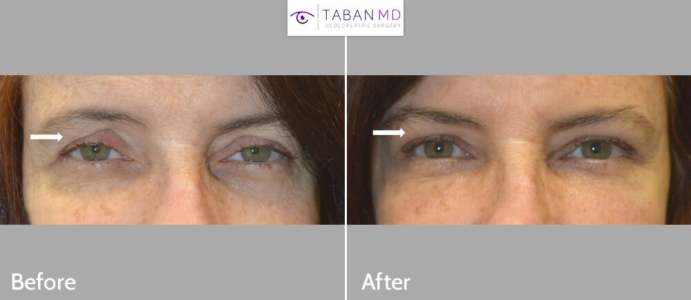 Eyelid Filler Injection Dark Circles Sunken Eyes Before and After Patient 62 Dr.Taban Beverly Hills