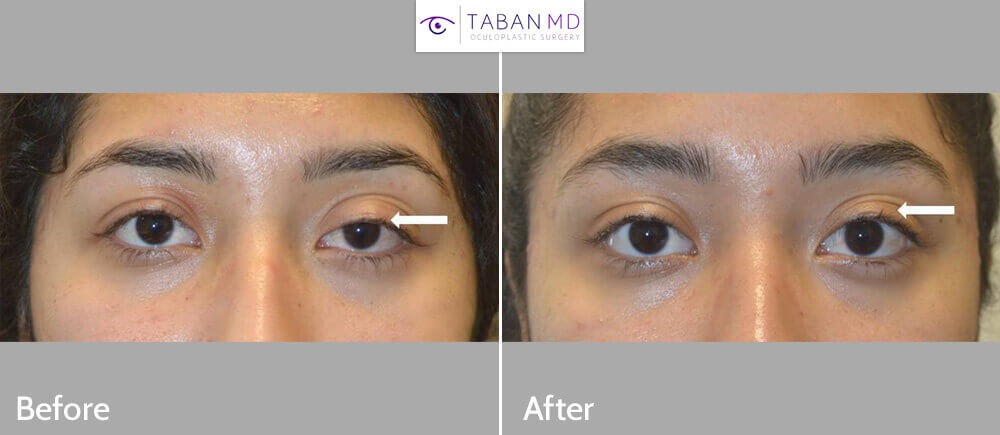 eyelid ptosis surgery Before and After Patient 59 Dr.Taban Beverly Hills