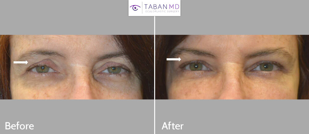 Eyelid Ptosis Surgery Before and After Patient 60 Dr.Taban Beverly Hills