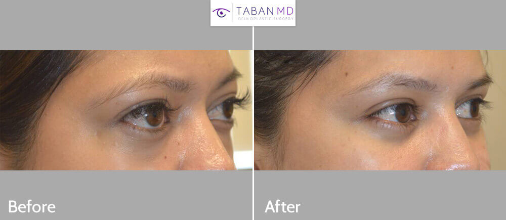 Graves Disease Thyroid Eye Disease Orbital Decompression bulgy Eye Surgery Before and After Patient 25 Dr.Taban Beverly Hills