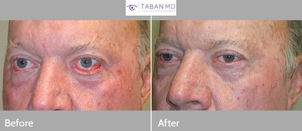 60+ year old male, with bilateral lower eyelid cicatricial ectropion (eyelid rolls away), underwent lower eyelid ectropion surgery with skin graft (where skin was taken from the upper eyelid). Before and 3 months after eyelid surgery photos are shown.