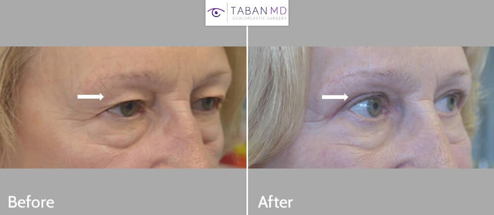 66 year old female with significant loose upper eyelid skin underwent upper blepharoplasty. Note more rested eye appearance after eyelid lift.