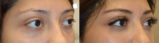 24 year old female, complained of bulging eyes and lower eyelid retraction with sclera show. She underwent NON-surgical upper eyelid filler and under eye filler injection. Before and 1 month after eyelid filler injection photos are shown.