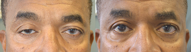 59 year old male, with history of failed right upper eyelid ptosis surgery (by another surgeon), underwent revision droopy upper eyelid ptosis repair. Before and 2 months after eyelid surgery photos are shown.
