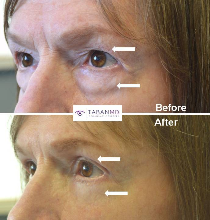 70+ year old female, complained of saggy upper eyelids and under eye bags, looking tired and older, underwent cosmetic male upper blepharoplasty and transconjunctival lower blepharoplasty (transconjunctival technique with eye fat bags repositioning to the tear tough area plus skin pinch), resulting in more rested youthful eye appearance with natural results.