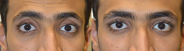 LA Change Eye Shape Procedure