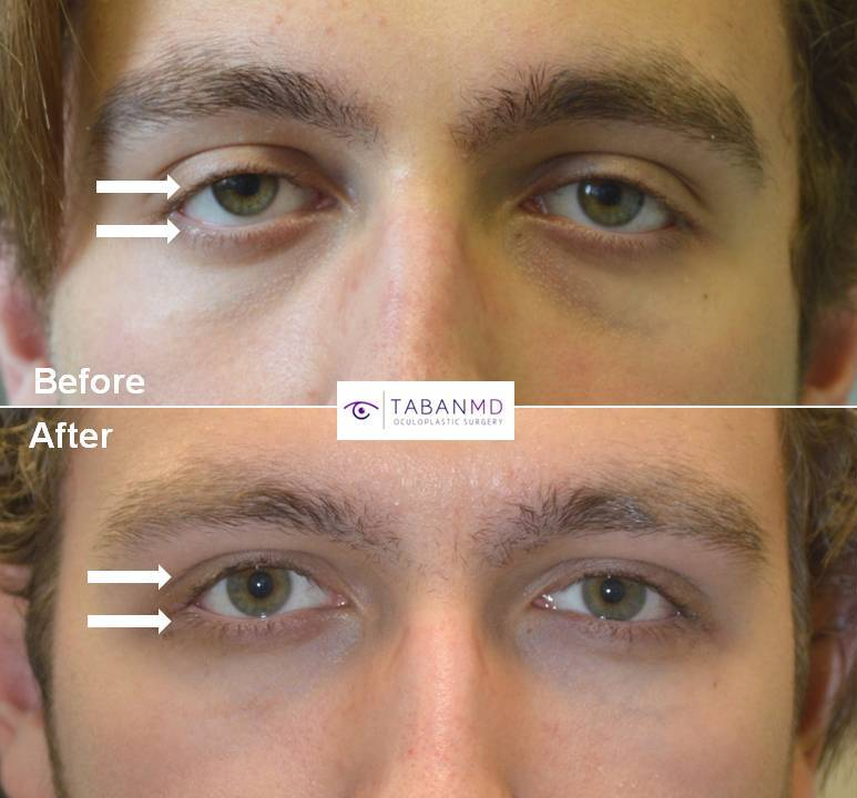 18-year-old young man, with congenital droopy lower eyelids with negative canthal tilt and droopy upper eyelids (ptosis), looking sad and tired, underwent lower eyelid retraction surgery with canthoplasty and scarless droopy upper eyelid ptosis surgery. Before and 3 months after eye plastic surgery photos are shown.