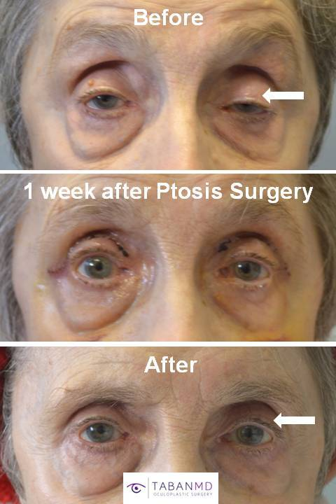 86 year old female, with severe age-related droopy upper eyelids (ptosis) underwent functional droopy upper eyelid surgery. Before, 1 week after, and 1 month after eyelid ptosis repair photos are shown.