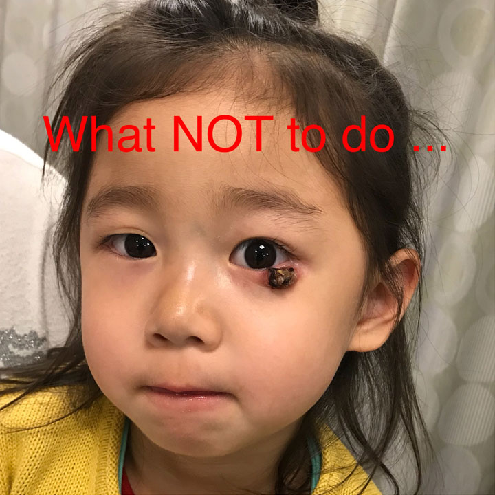 What NOT to do! Although most eyelid stye (chalazion) go away, there are some that are more aggressive and need to be drained. Parents of this 3 year old girl assumed the stye was going to resolve on its own but it progressively got larger with tissue destruction.