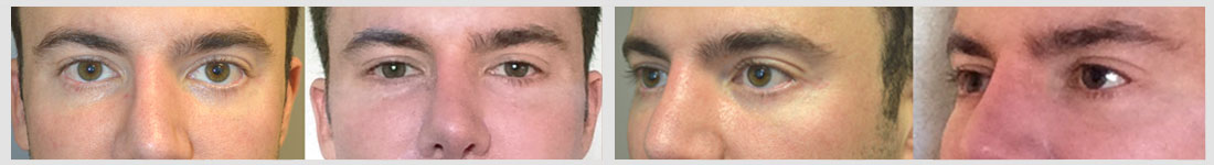38 year old male, with lower eyelid retraction due to previous lower blepharoplasty (by another surgeon), underwent lower eyelid retraction surgery (with alloderm spacer graft), canthoplasty, and tear trough (orbital rim) implant placement. Before and 6 months after surgery results are shown. You can see his written testimonial on realself https://www.realself.com/review/beverly-hills-ca-eyelid-retraction-repair-eyelid-retraction-surgery