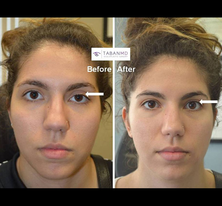 Young lady with congenital left droopy upper eyelid ptosis underwent scarless internal ptosis surgery. Before and 2 months after eyelid ptosis repair photos are shown. You can listen to her video testimonial on our testimonial page.