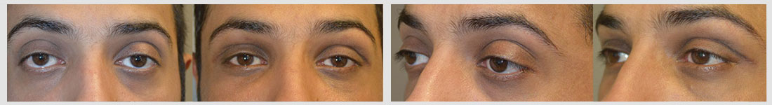 Before (left) young Middle-Eastern male with bulging eyes, lower eyelid retraction with sclera show, and sad eyes. 3 months after (right) he underwent cosmetic orbital decompression, lower eyelid retraction surgery, and canthoplasty to give more almond-shaped eyes.