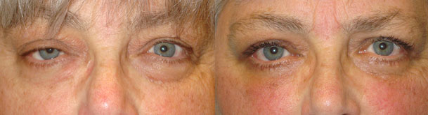 Before (left) and 3 months after (right) eyelid surgery including right upper eyelid ptosis surgery (eyelid lift through external approach), bilateral upper blepharoplasty (upper lid skin removal), and lower blepharoplasty (transconjunctival with fat repositioning and skin pinch).