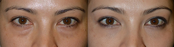 Before (left) and 2 months after (right) cosmetic transconjunctival lower blepharoplasty with fat repositioning (using hidden stitch-less incision inside the lower eyelid, the fat pocket were redistributed to fill the hollow tear trough area) plus conservative skin removal using skin pinch method.