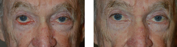 Before (left) After (right) 70 year old male, who underwent right lower eyelid ectropion surgery with skin graft.