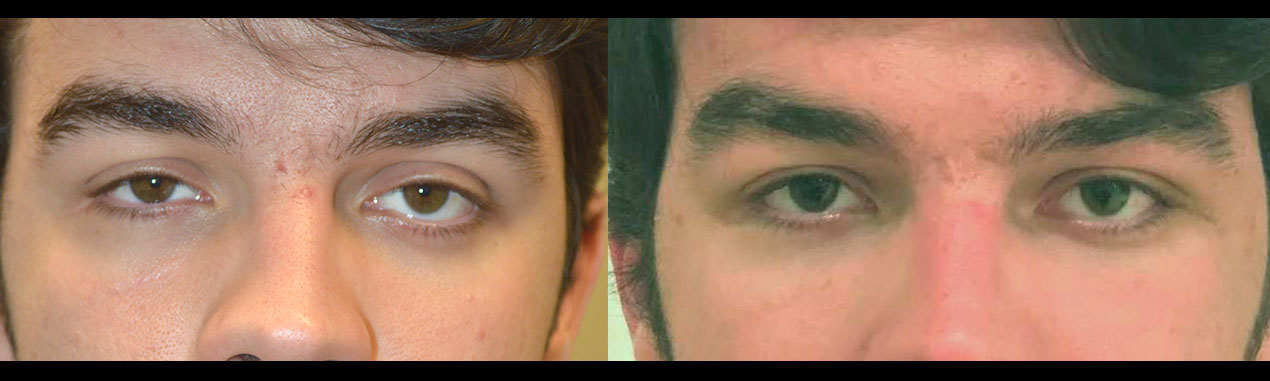droopy upper eyelid ptosis surgery eye asymmetry