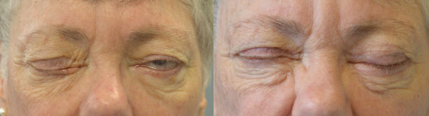 68 year old female, with paralytic left lagophthalmos (unable to close left eye) from left eyelid facial palsy, underwent left upper eyelid gold weight and left lower eyelid ectropion repair with skin graft. Before and 3 months after eyelid surgery photos are shown.