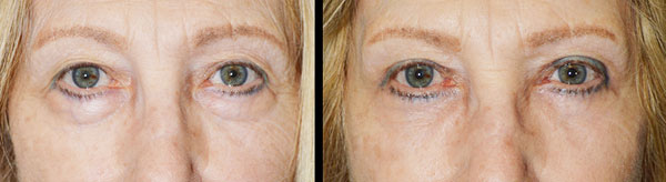 Before (left) and 3 months after (right) cosmetic quad-blepharoplasty, meaning bilateral upper blepharoplasty (with skin removed from upper eyelids) and bilateral lower blepharoplasty (transconjunctival incision with fat redraping).
