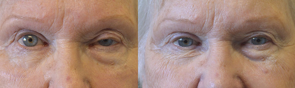 76 year old female, with history of failed left upper blepharoplasty with droopy upper eyelid (ptosis), underwent revision left upper eyelid ptosis repair. Before and 2 months after eyelid surgery photos are shown. She is very happy with the improved vision and eye symmetry.