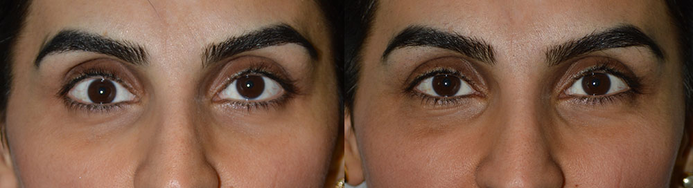 Before (left photo) and 3 months after (right photo) of a 40 year old female who underwent right eye sunken eye (enophthalmos) surgery. Note that the right eyeball is lower (termed hypoglobus) in the before photo and then in normal symmetric position in the after photo. She would also benefit from filler injection on both sides.