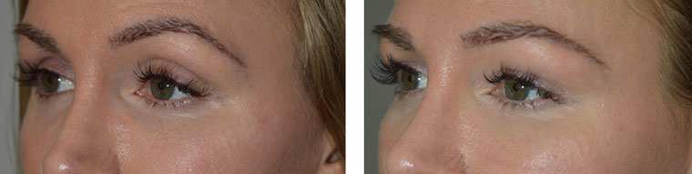 Belotero filler injection in upper eyelids