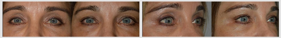 Before (left) Middle age woman with upper eyelid hollowness and sunken eyes after blepharoplasty. After (right) after upper eyelid-brow filler (Belotero) injection. Note more youthful appearance.