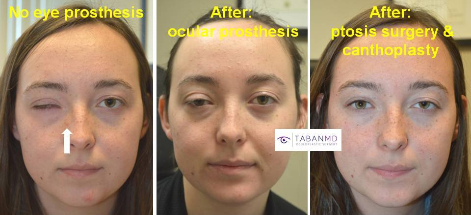 18 year old young brave woman, underwent revision of her right ocular prosthesis (by ocularist) plus right upper eyelid ptosis surgery and right canthoplasty.