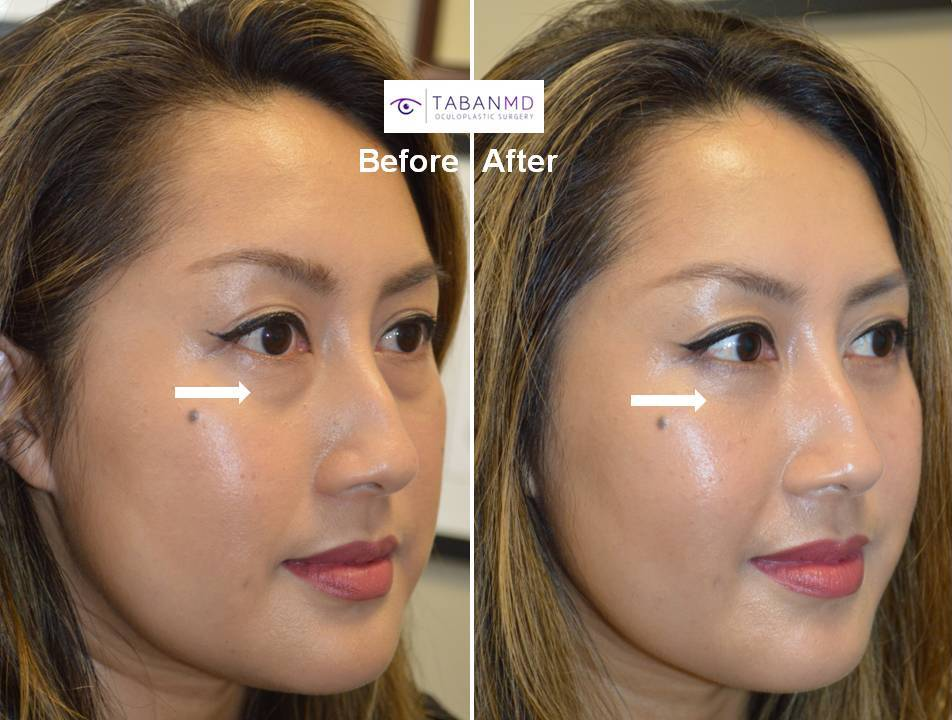 lower eyelid blepharoplasty Before and After Patient 19 Dr.Taban
