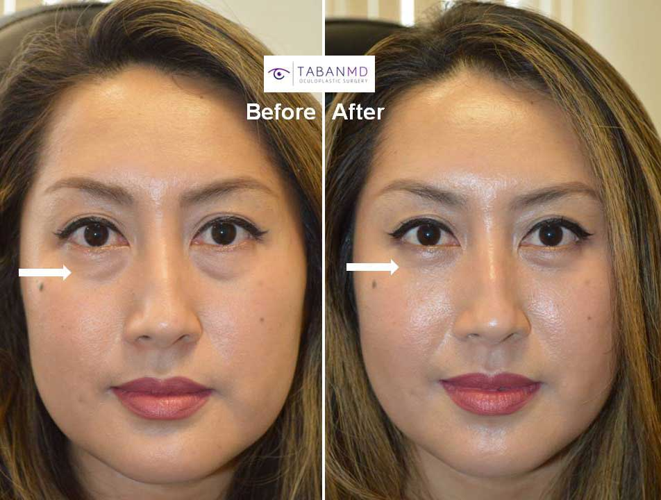 lower eyelid blepharoplasty Before and After Patient 20 Dr.Taban