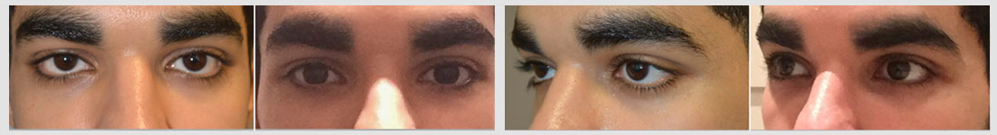 Young Middle Eastern man, with congenital lower eyelid retraction and midface bony deficiency, underwent lower eyelid retraction surgery with canthoplasty and infraorbital silicone implant to create more almond shaped eyes.