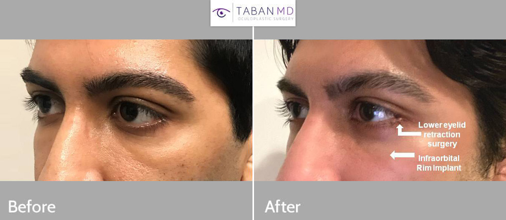 Young man with congenital lower eyelid retraction with sclera show and under eye hollowness underwent lower eyelid retraction surgery with canthoplasty (almond eye surgery) and infraorbital rim silicone implant.