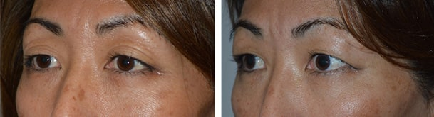 52 Year Old Asian female with fat injection/transfer in upper eyelids and brows, to help stretch the loose saggy skin. Before (left), After (right).