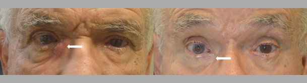 80+ year old male, with severe infection and blockage of right tear drainage duct (dacryocystitis from nasolacrimal duct obstruction) underwent succesful scarless endoscopic right dacryocystorhinostomy (DCR).