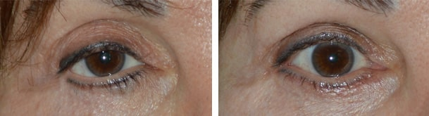Before (left) Middle age woman with multiple prior eyelid surgeries and blepharoplasty, resulting in right lateral canthal angle distortion and lowering, unnatural right lower eyelid contour, and droopy upper eyelid. After (right) 2 months after revisional eyelid treatment, right canthoplasty, right lower eyelid retraction surgery (internal, with midface lift, without graft) and bottom eye crease contour surgery. Fat injection in upper eyelids.