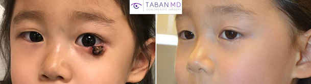 Before and 1 year after reconstructive lower eyelid surgery in a brave young girl with left lower eyelid necrotic lesion.