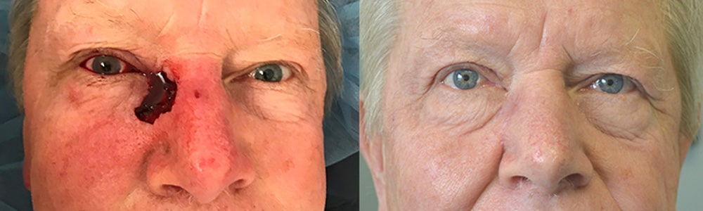 68 year old male, with large right eyelid and nose defect after Mohs surgery to remove basal cell carcinoma, underwent eyelid reconstruction. Before and 6 weeks after eyelid skin cancer reconstruction photos are shown.