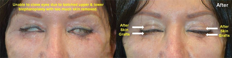 Middle age woman with multiple botched upper and lower blepharoplasty where too much skin was removed with inability to close her eyes. She underwent reconstructive upper and lower eyelid skin graft placement with significant improvement of eye closure and comfort. Before and 2 months after eyelid surgery photos are shown.
