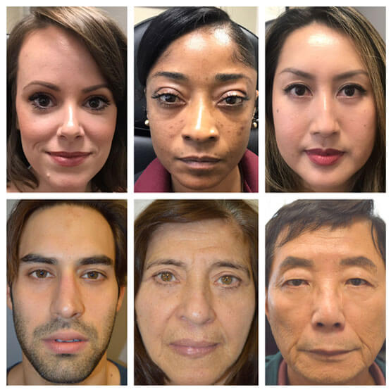 After lower blepharoplasty of mix of patients with different ages, sex, and ethnicity, depicting the benefit of lower blepharoplasty irrespective of those factors.