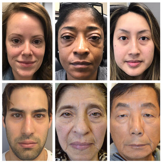 Before lower blepharoplasty of mix of patients with different ages, sex, and ethnicity, depicting the benefit of lower blepharoplasty irrespective of those factors.