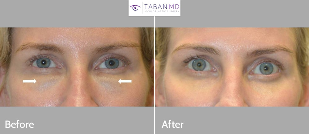 Hyaluronidase was injected to dissolve significant swelling and fullness and Tyndall effect of under eye filler (Juvederm) done by another injector.